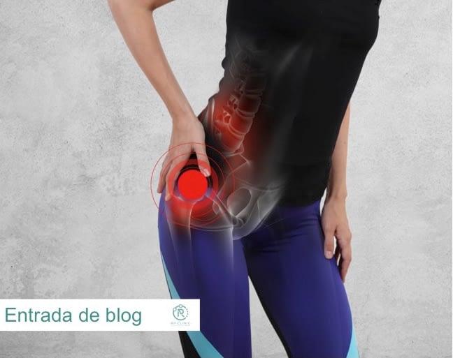 Dolor de cadera. El síndrome de pinzamiento femoroacetabular