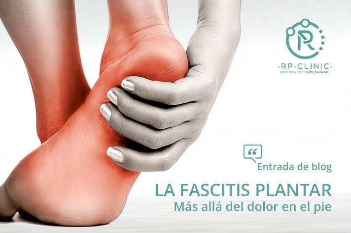 La fascitis plantar, más allá del dolor en el pie